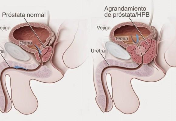 El cáncer de próstata, tan cercano y tan lejano.